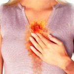 Что делать при изжоге, симптомы и причины жжения