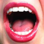 Заболевания, о которых сигнализирует ухудшение состояния полости рта